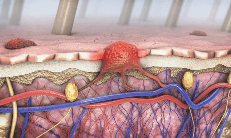 Melanoma Signs & Symptoms | Premier oncology