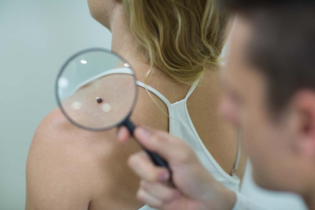 Melanoma Treatment in Houston