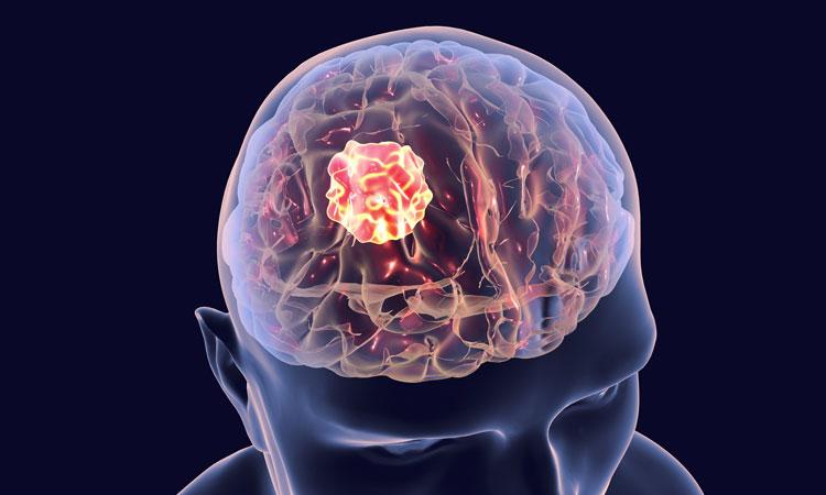 Brain Cancer Treatment Katy, Memorial,Houston | Premier Oncology Consultant | Premier Oncology Consultant