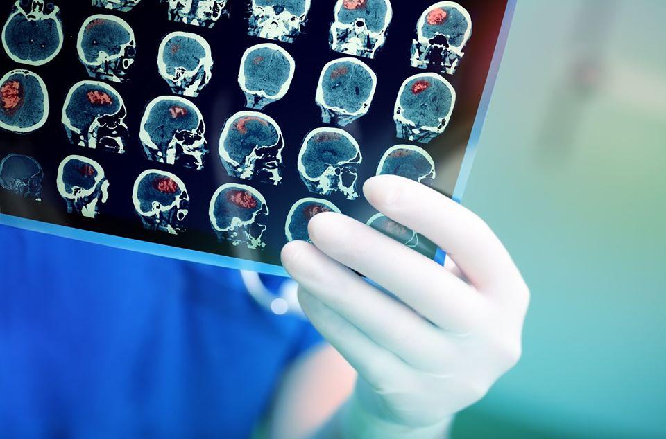 Types of Primary Brain Tumors